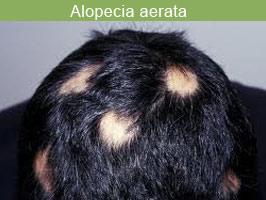 alopecia-aerata