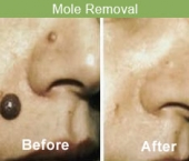 moleremoval