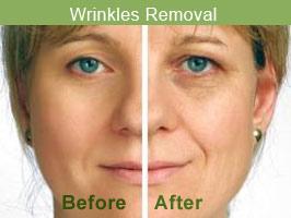 wrinklesremoval